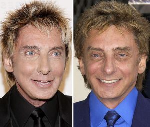 Manilow